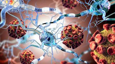 Autoimmune-Disorders-testimonial