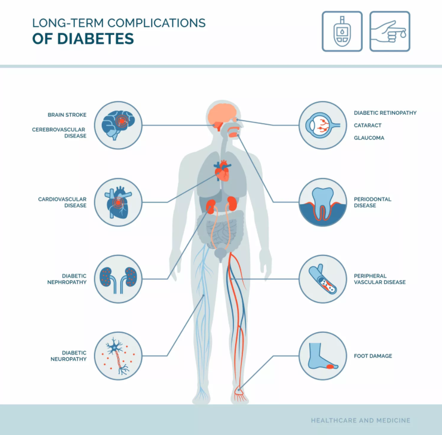 What Are Complications of Type 2 Diabetes?